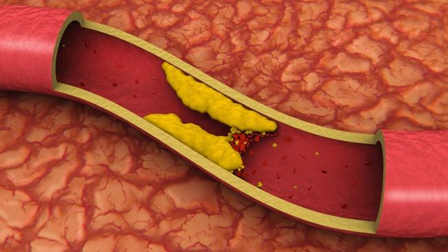 Группы лекарств для снижения холестерина