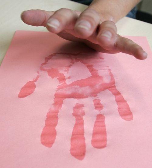 Токсикодермия у детей лечение фото