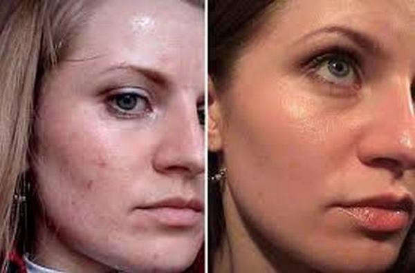 дряблая кожа в 25 лет
