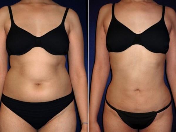 как быстро убрать жир с живота женщине