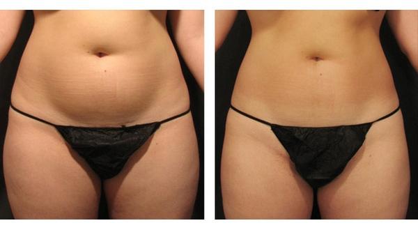 быстро похудеть убрать жир живота
